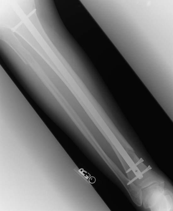 broken leg with pins